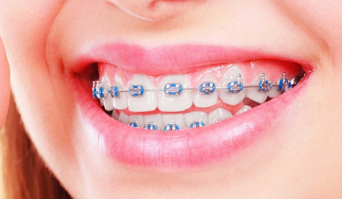 طريقة عمل تقويم الأسنان Dental Braces Colors Dental Braces Cute Braces Colors