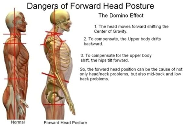 Pin By Atlantic Chiropractic On Health Posture Fix Neck
