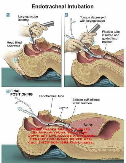 Endotracheal Intubation Anatomy Pinterest Medical Medicine