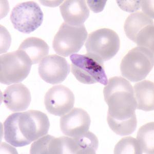 plasmodium sp falciparum banana shaped gametocyte