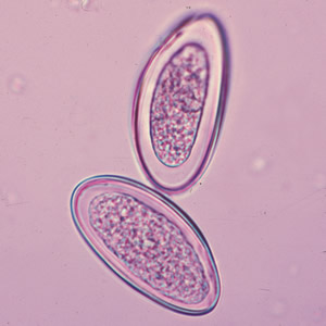 enterobius vermicularis oxyure)