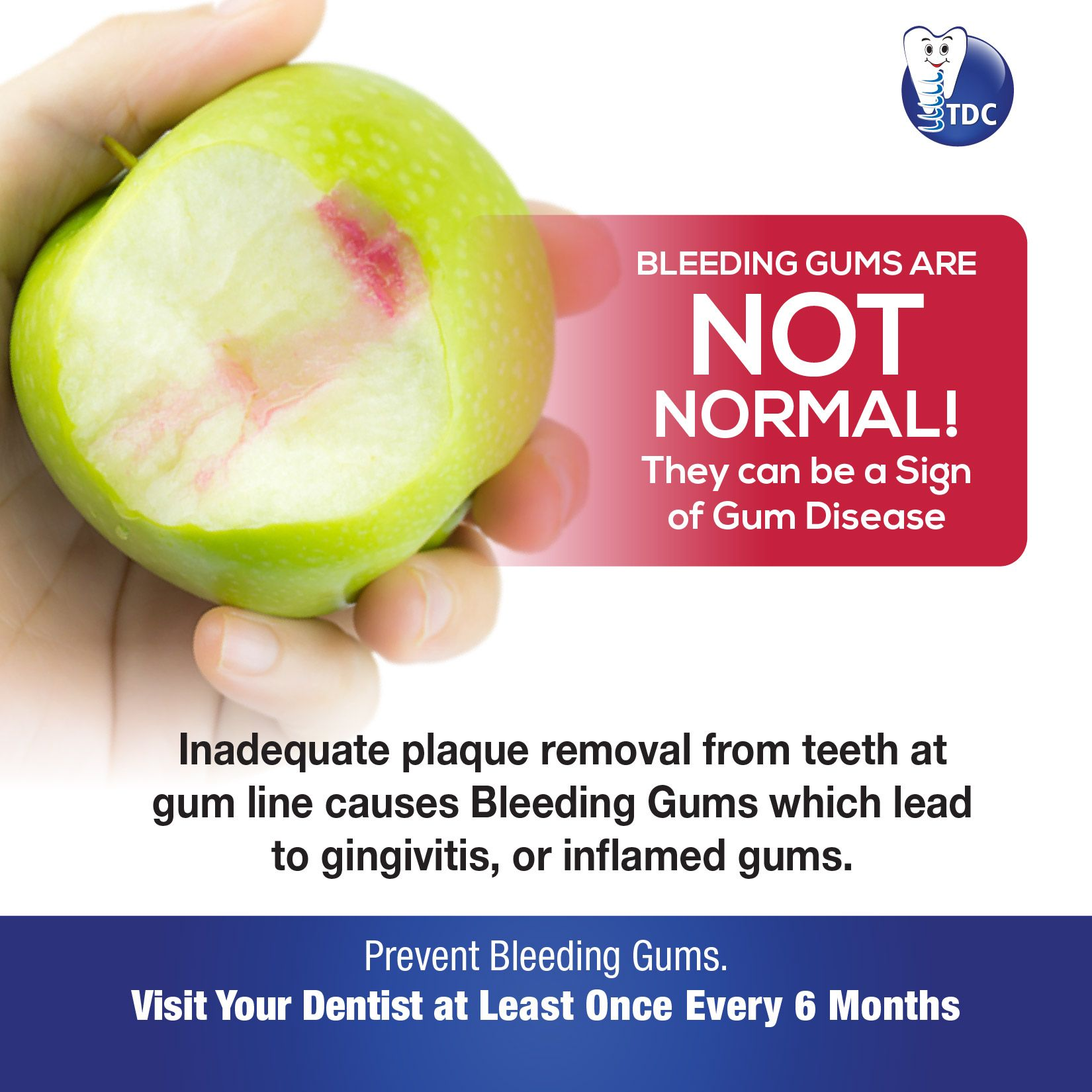 BLEEDING_GUMS ARE NOT NORMAL! They can be a sign of