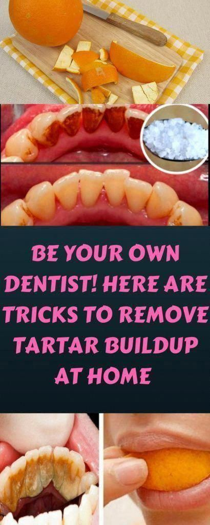 Be Your Own Dentist! Here are Tricks to Remove Tartar Buildup at Home #OralCareA...,  #Buildup #dentist #Home #OralCareA #REMOVE #Tartar #Tricks #WhatAreTheContraindicationsOfOralCare #WhatsOralCare