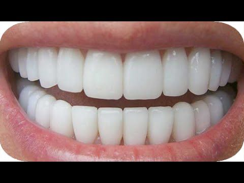 How To Whiten Teeth At Home In 3 Minutes Get Natural Whiten Teeth