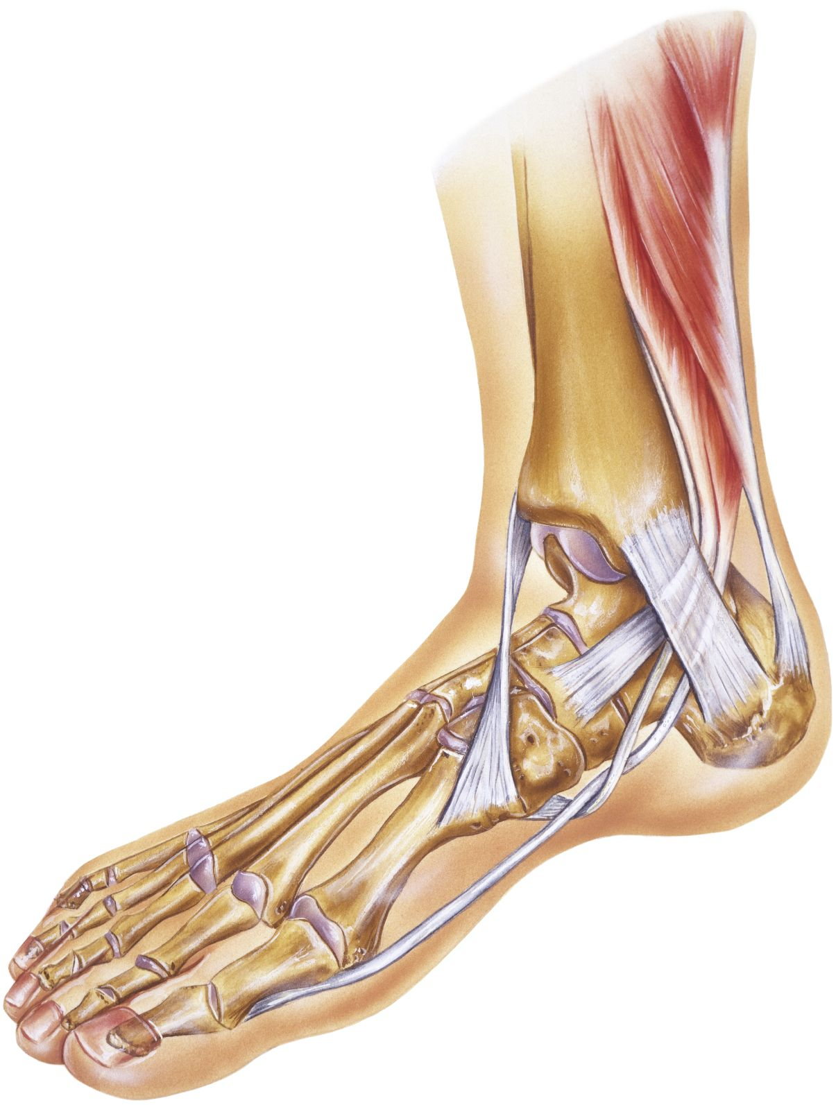 Posterior tibial tendonitis is defined as inflammation of the ...