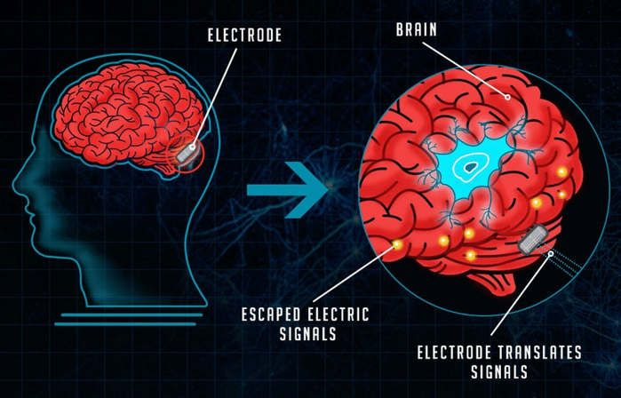 The Evolution Of Brain Computer Interfaces Brain And Evolution