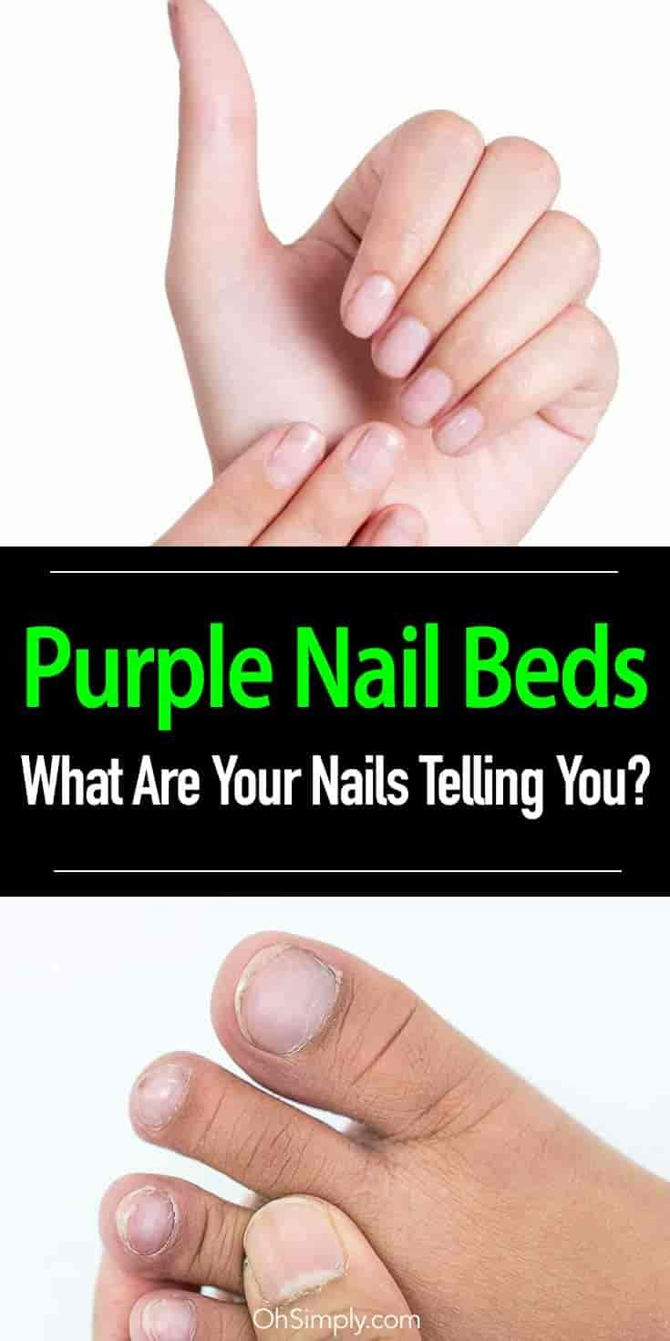 What are the possible causes of discolored or purple nail beds ...