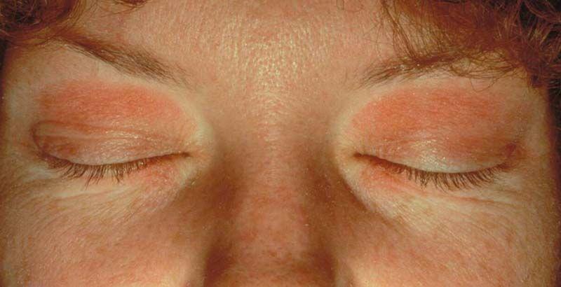 Eyelid Dermatitis Xeroderma Of The Eyelids Eczema Of The