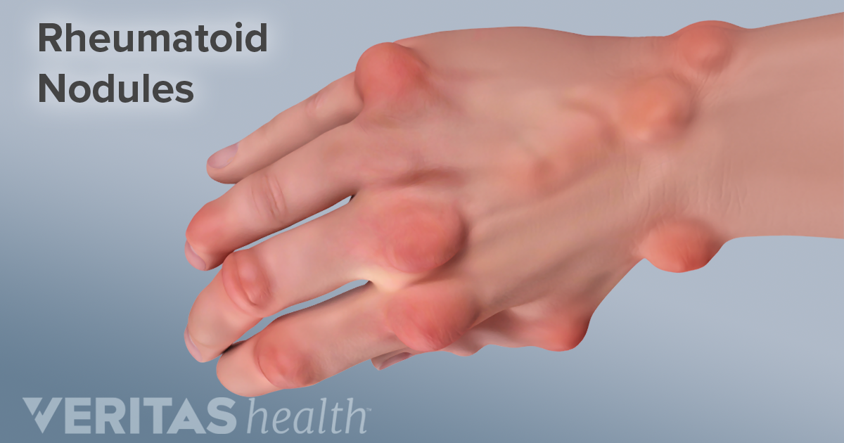 Hand Rheumatoid Arthritis Ra Signs And Symptoms