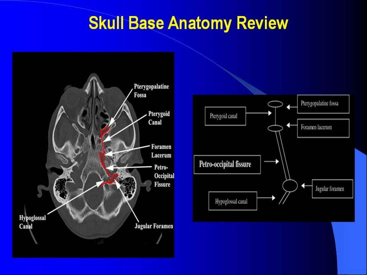 Skull Base: Review and Pathology | VEOMED | RADIOLOGY | Pinterest ...