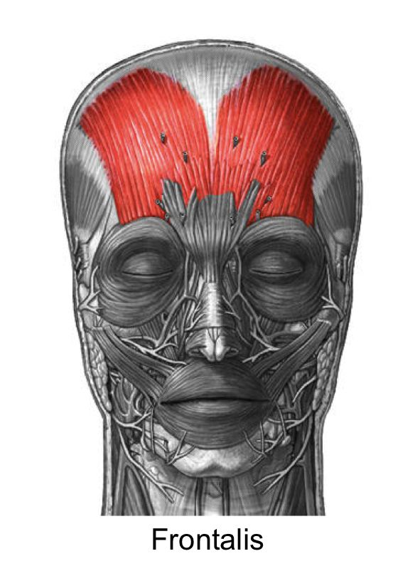 Frontalis Muscles In 2018 Pinterest Muscle Anatomy Muscle And