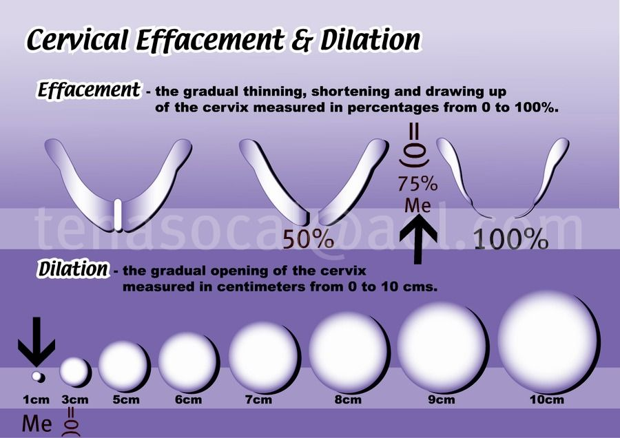 The difference between effacement, dilation and ...