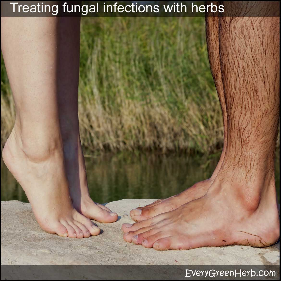 Find tips for treating fungal infection with home remedies and