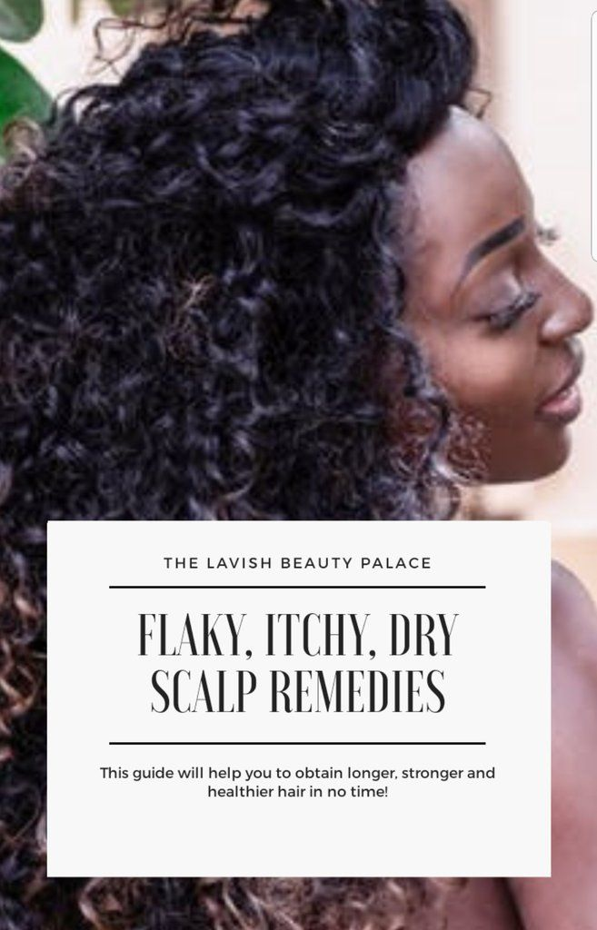 what to do for itchy flaky scalp