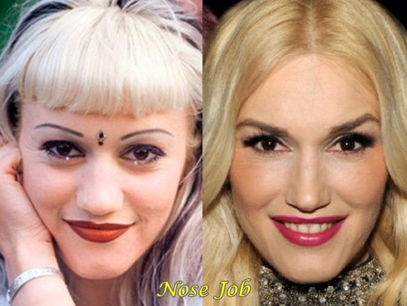 Gwen Stefani Before After Plastic Surgery Nose Job   physiognomy
