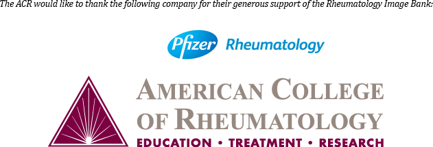 Research from American College of Rheumatology