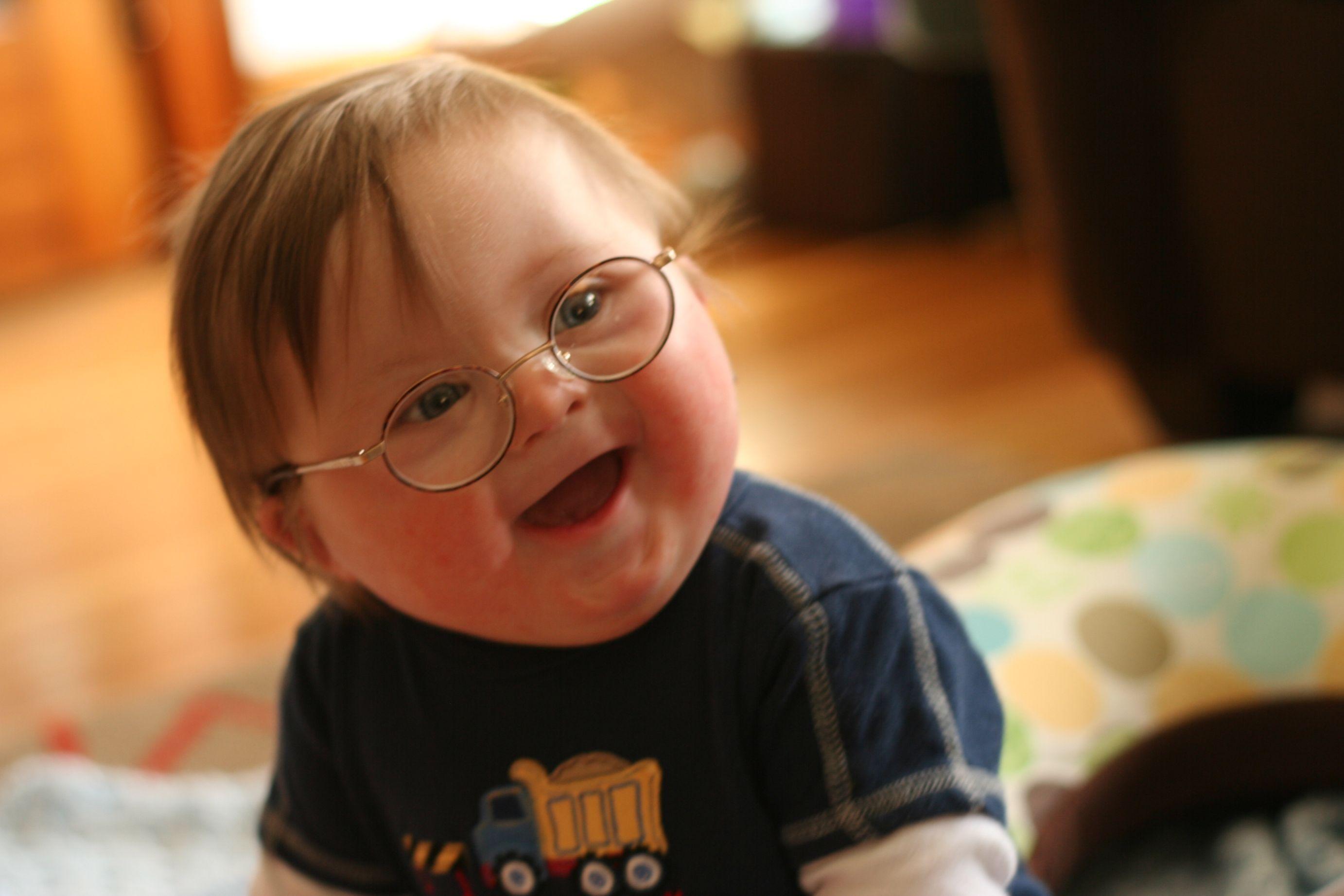 Картинка ребенок с синдромом дауна