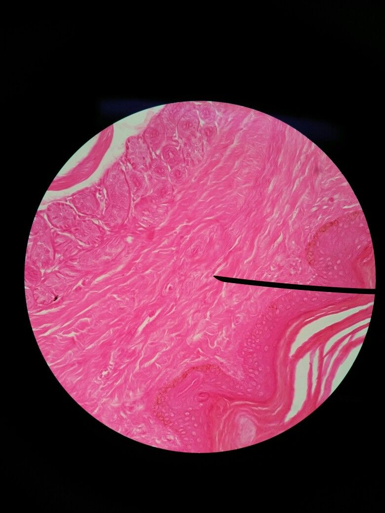 Dense irregular connective tissue (dermis of thick skin ...