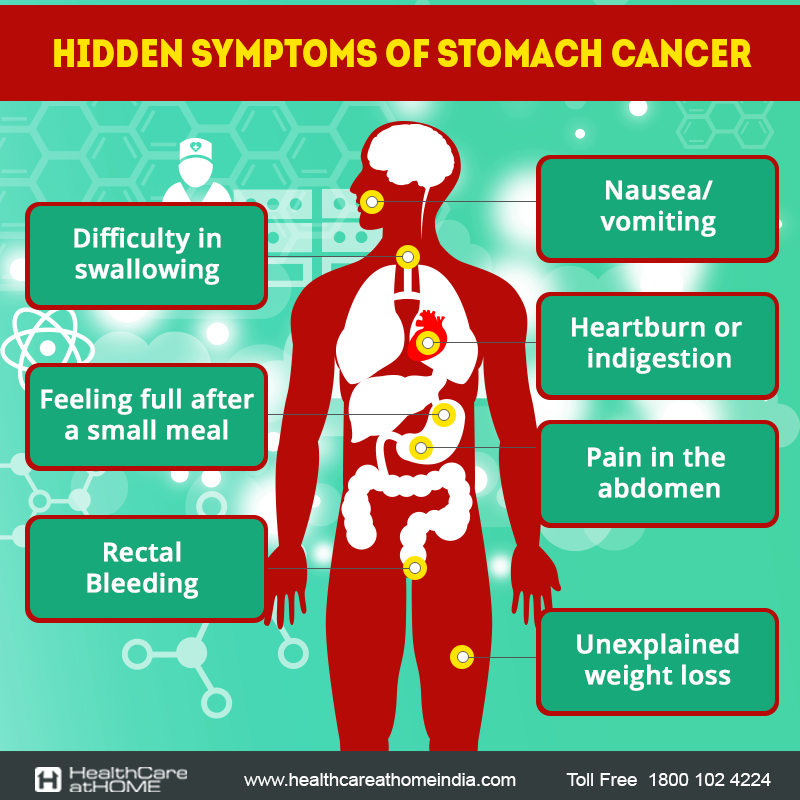 most of the times with stomach cancer, the diagnosis happens quite, Human Body