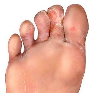 How to Get Rid of Foot Fungus | Feet | Foot remedies, Foot fungus ...
