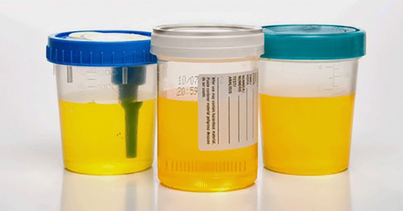 By The Color Of Your Urine Find Out If You Have Any Infection In