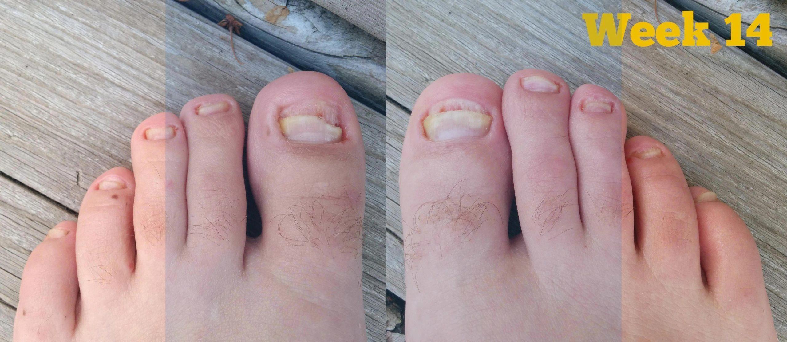 Do Laser Toenail Fungus Treatments Work Funguslasertreatmentreviews Howtorecon Healthy Nails In 2020 Toenail Fungus Remedies Toenail Fungus Toenail Fungus Cure