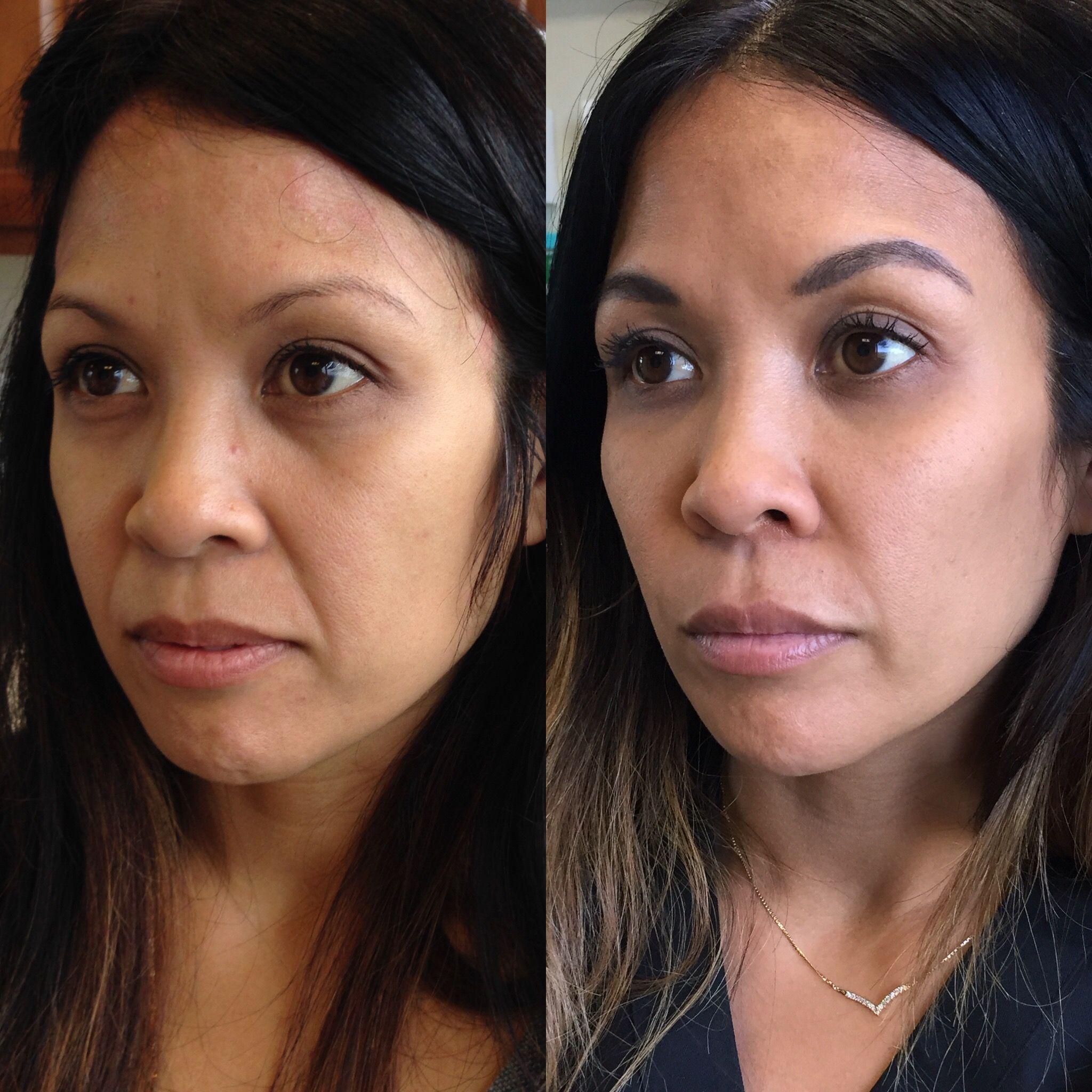 Dermal fillers for nasolabial folds and cheek enhancement