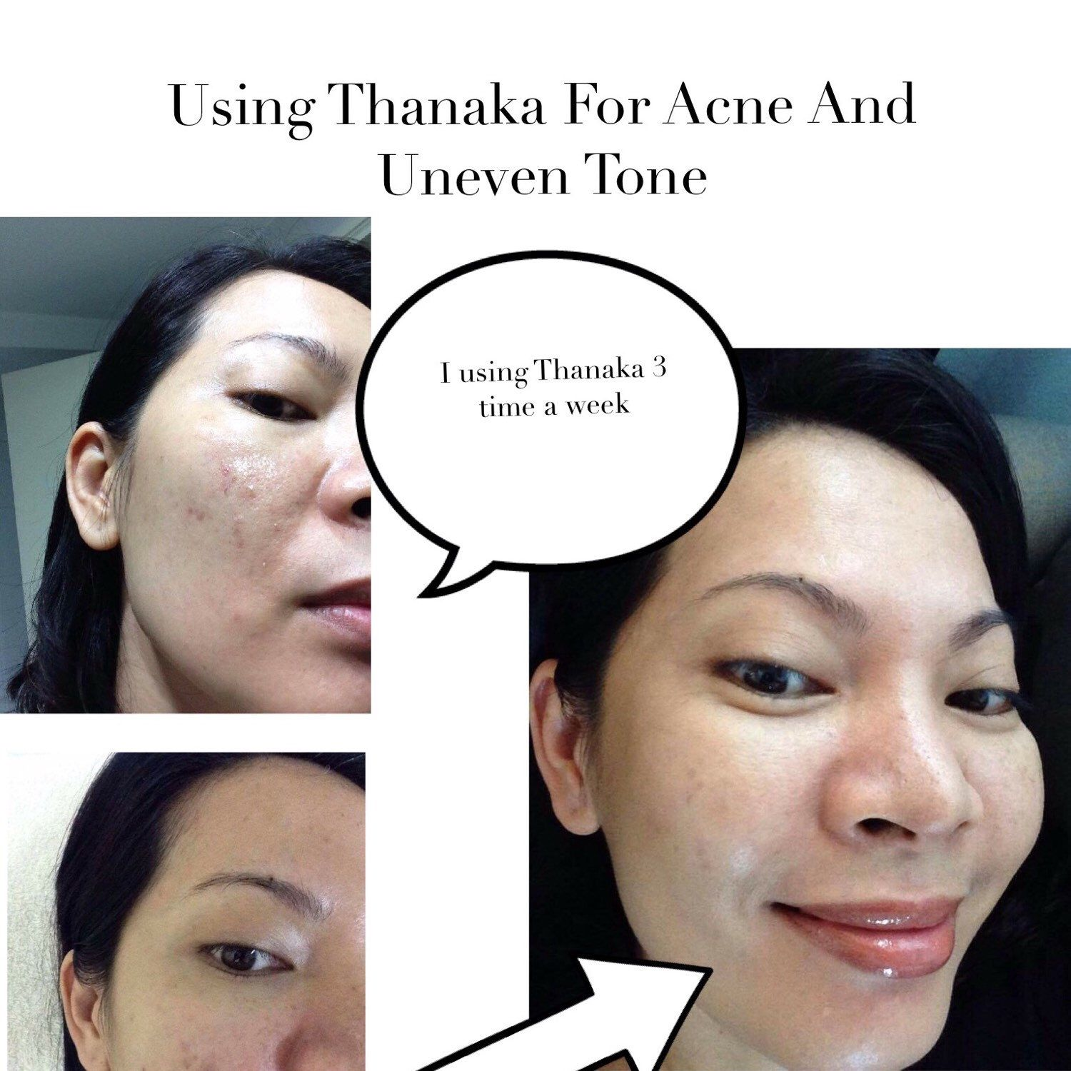 Using Thanaka For Acne And Uneven Tone | Thanaka powder in