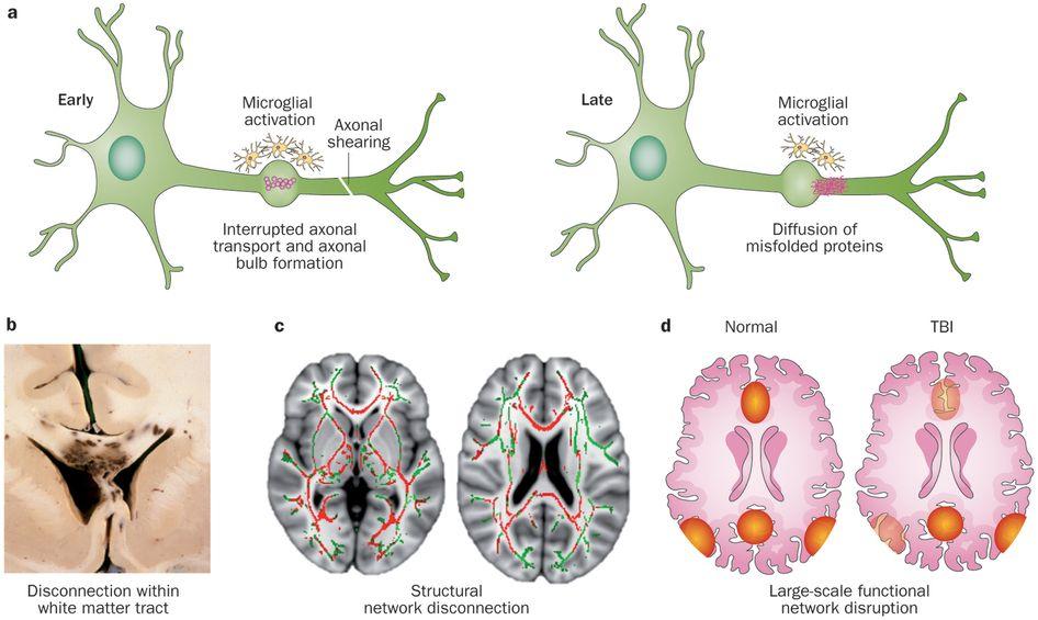Diffuse Axonal Injury - Google Search | Brain injury ...