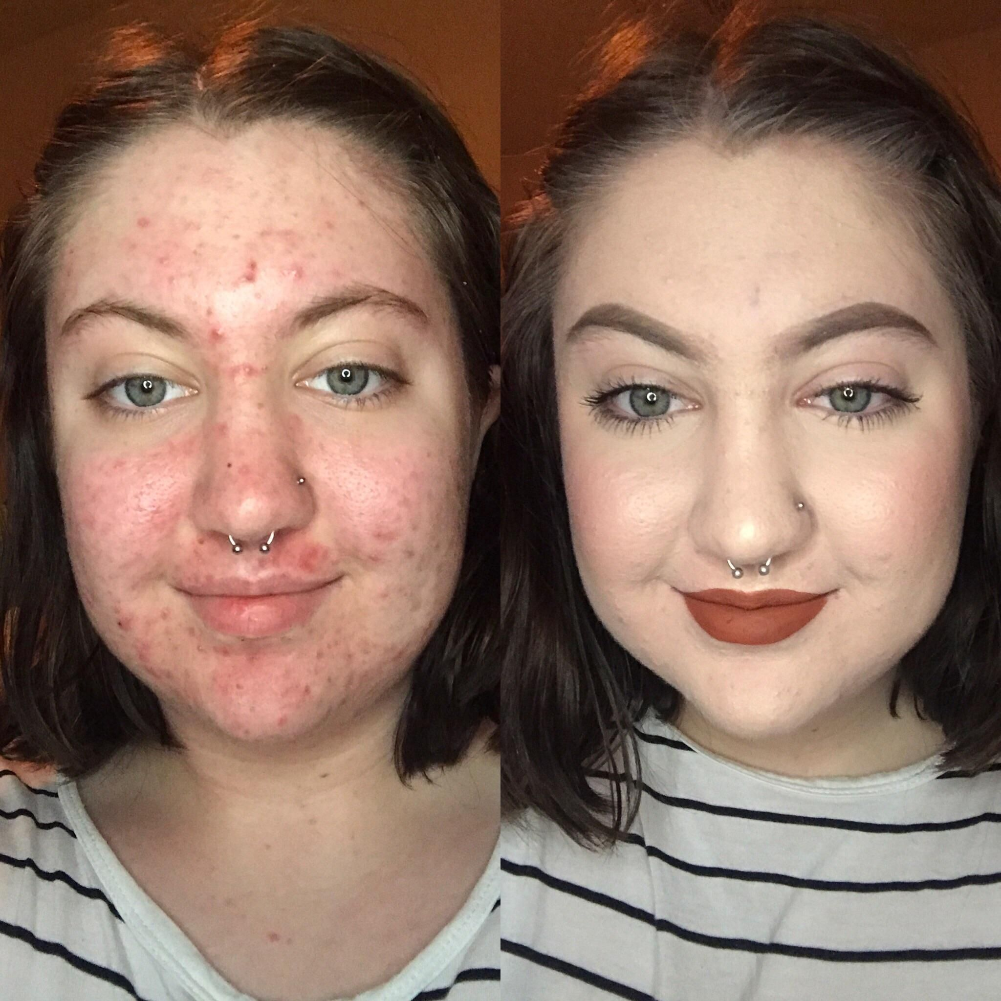 Whoa! See This Woman's Amazing BeforeandAfter Showing