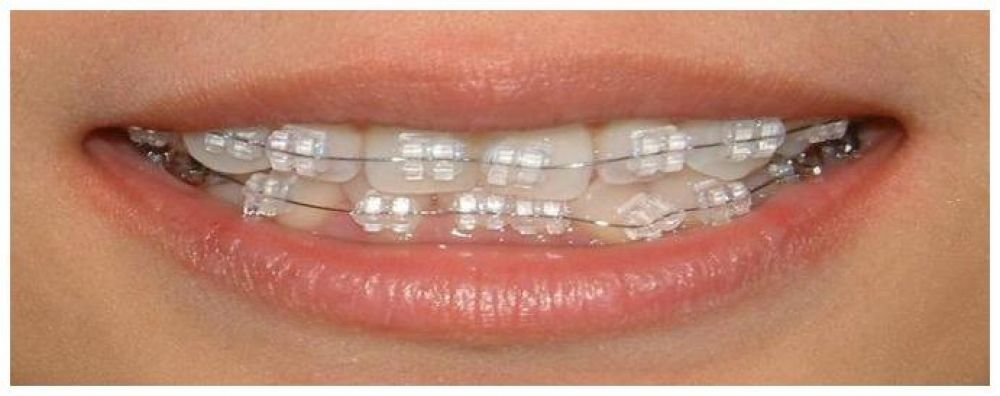 Pin On Teeth Braces