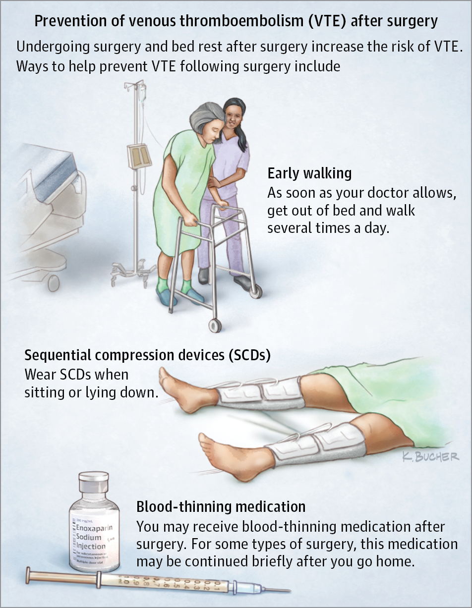 Preventing Venous Thromboembolism After Surgery. JAMA