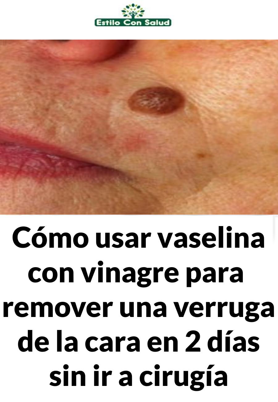 Pin On Facial