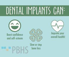 Dental Implant Quotes Unique Pindeluxe Dental Walled Lake On Deluxe Dental  Pinterest  Dental