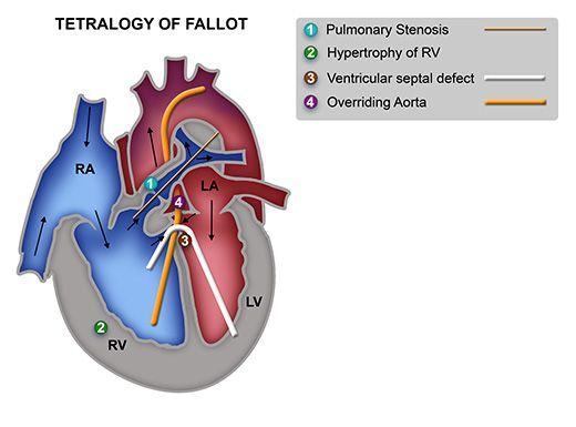 Pin By Nonas Arc On Overriding Aorta Ventricular Septal Defect