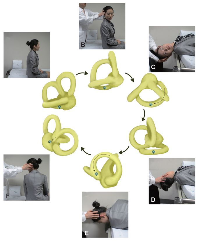 Modified Epleys Maneuver For The Treatment Of Right Pc Bppv After