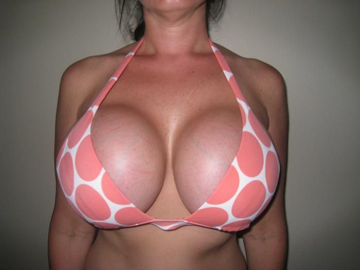 Breast fake large