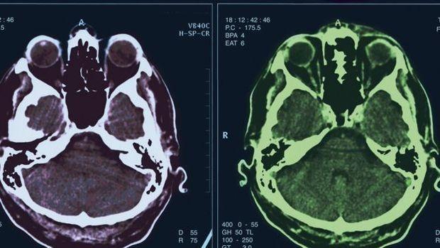 """Simpatía puede estar relacionada con la forma del cerebro -   Las características de la personalidad pueden estar relacionadas con la forma del cerebro, reveló un estudio, que midió la correlación entre las diferencias estructurales del órgano y los cinco principales tipos de personalidad. """"La forma de nuestros cerebro puede aportar sorprendentes..."""