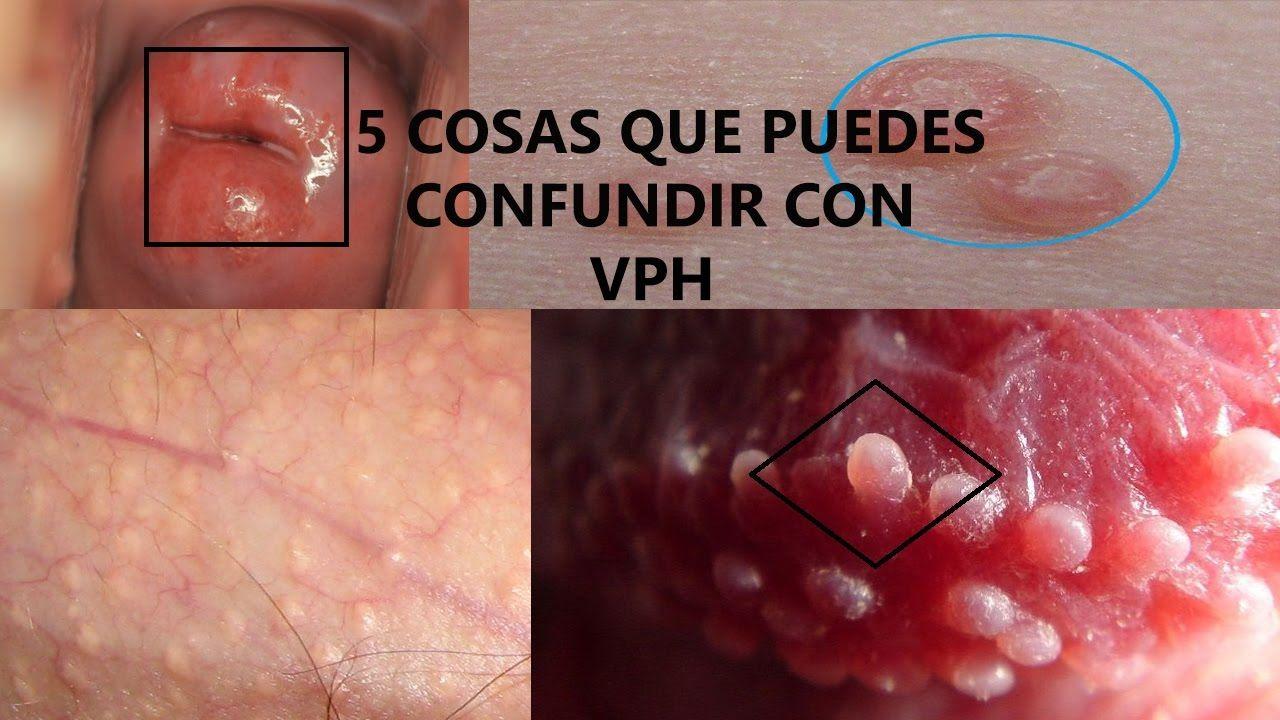 Ce înseamnă HPV şi cum previi contaminarea   Click