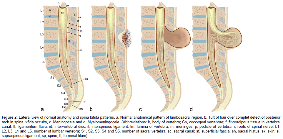 journal-spine-supraspinous-ligament-6-352-g002.png (962×471) | OB ...