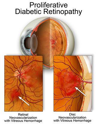 surowicza retinopatía diabetes