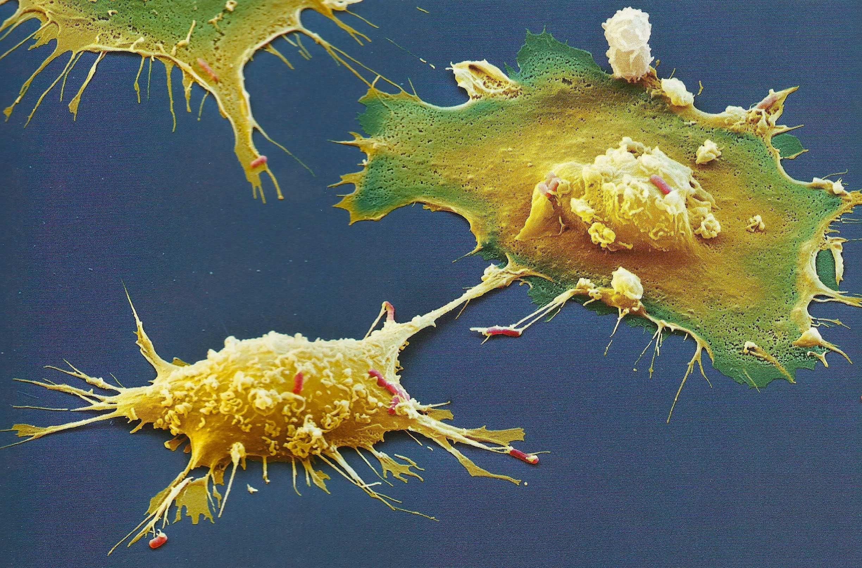 Macrophages-grabbing-ecoli2-.jpg (2448×1614)