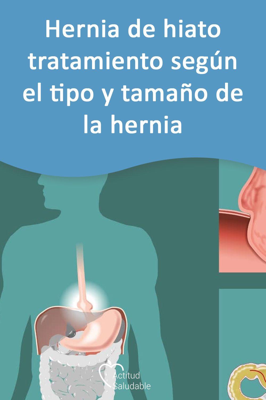 hernia hiatal sintomas y tratamiento