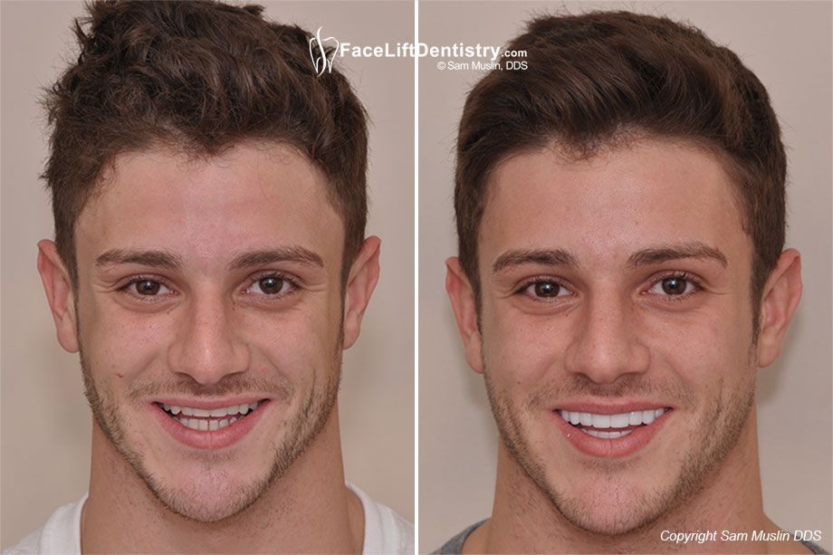 Image result for the perfect ideal masculine male face and