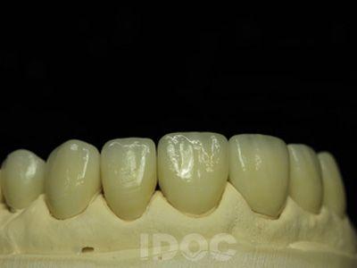 Emax All Ceramics Idoc Dental Lab Dental Lab Dental Ceramics Ceramics