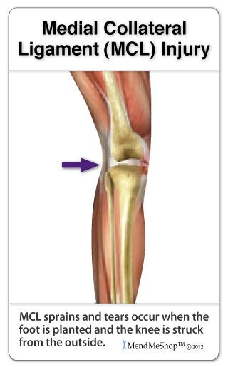 mcl ligament injury an injury to the medial collateral ligament