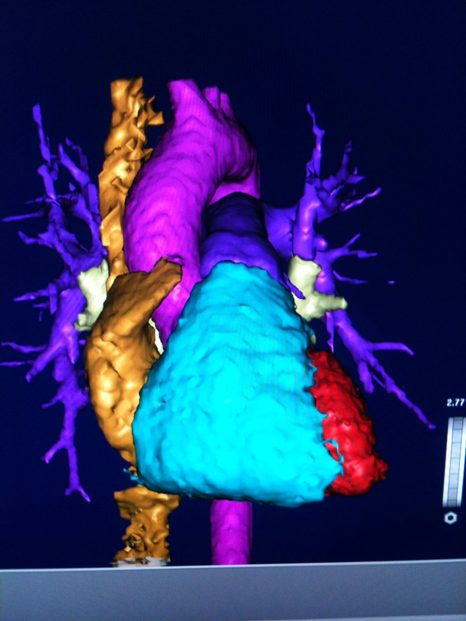 Electrophysiology Amp The Heart