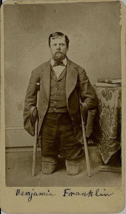 Retrato de um veterano da Guerra Civil que perdeu seus membros e a ponta do seu nariz para queimaduras enquanto marchava em todo o território de Dakota Plains, ca. 1870