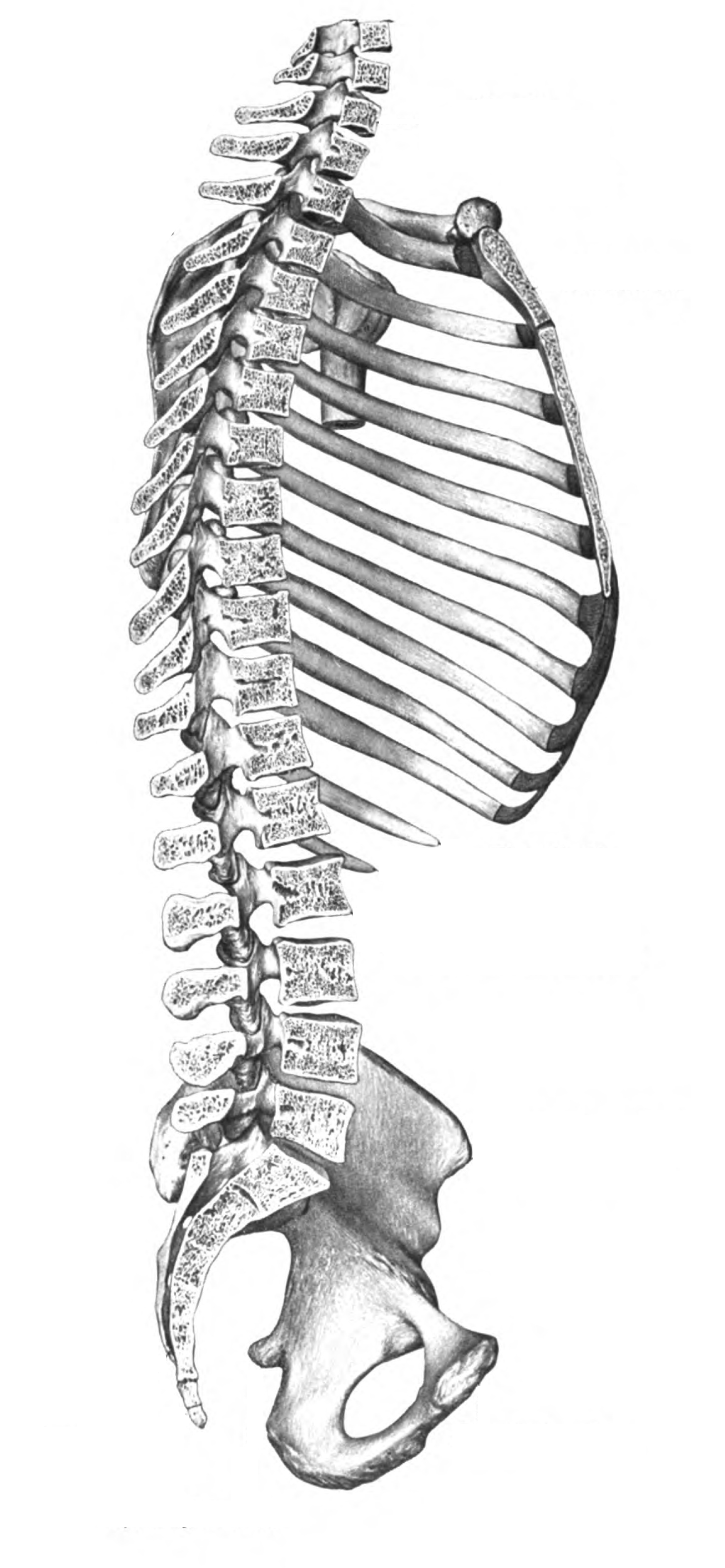 We have just added a sub page detailing dislocated vertebrae ...