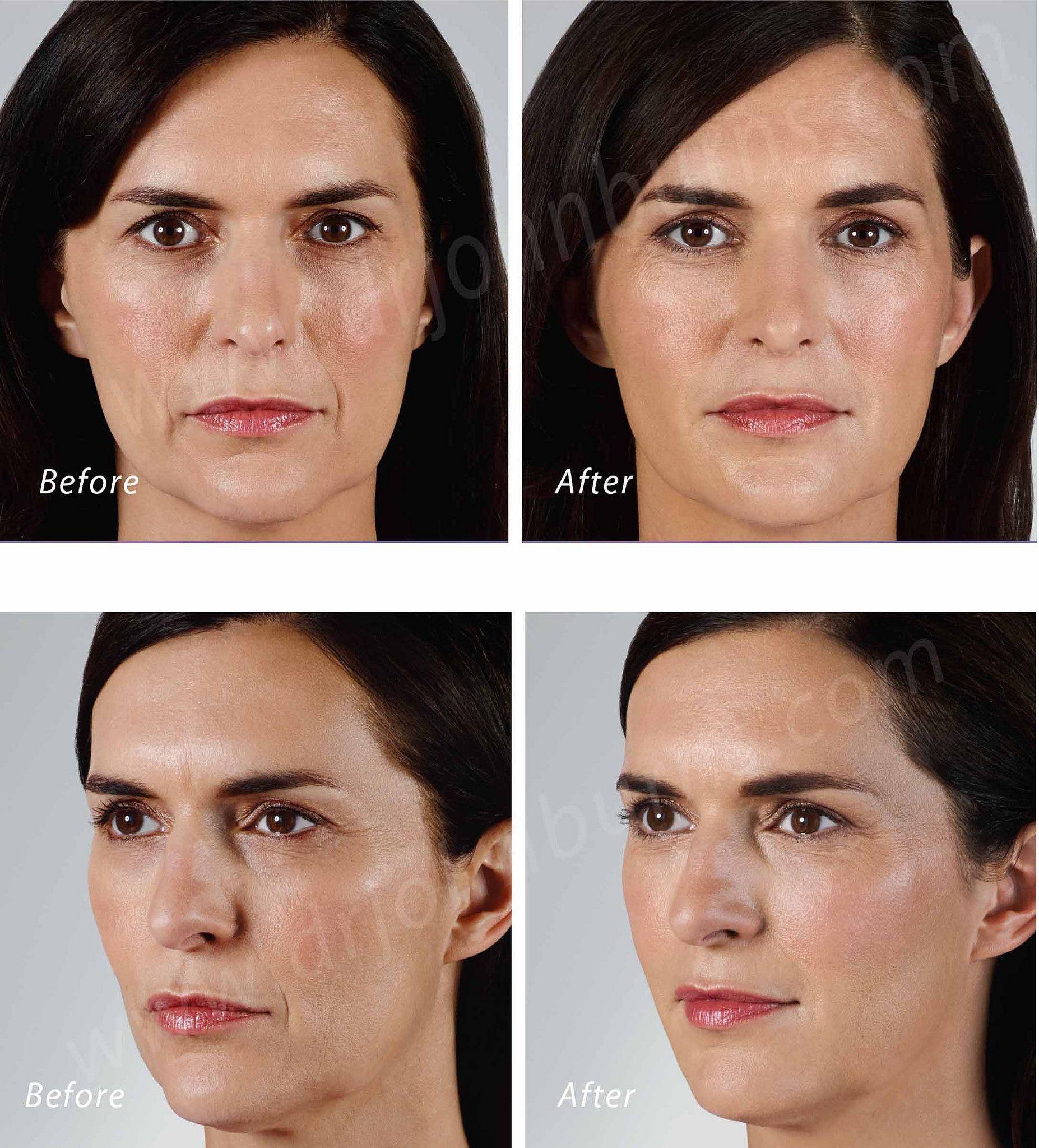 Vollure Facial Filler
